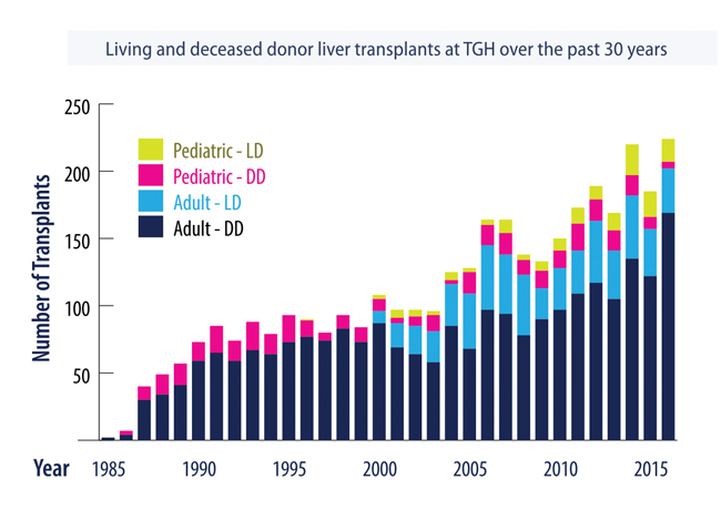 Living and deceased donor liver transplants